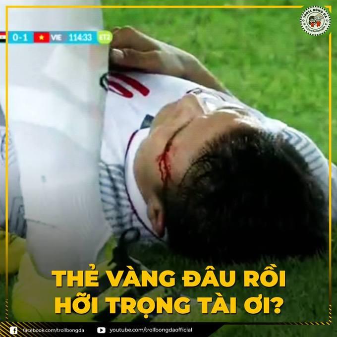 Chiến thắng của đội tuyển Việt Nam được đánh đổi bằng máu của tiền vệ Quang Hải.